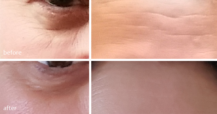 Timeless Matrixyl Synthe'6 Serum Before and After