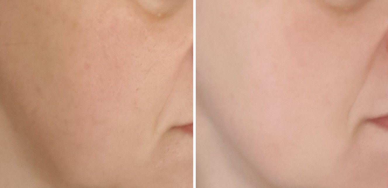 The Silk Crystal Total Lifting Mask Results